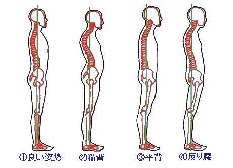 ぎっくり腰 の よう な 痛み 生理 前